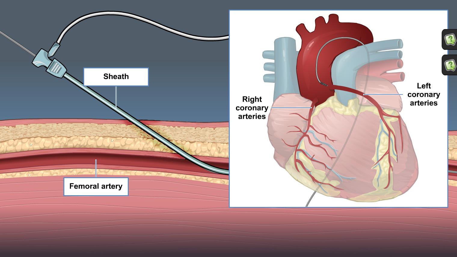 The Principles Of Cardiac Catheterization Adam Ondemand