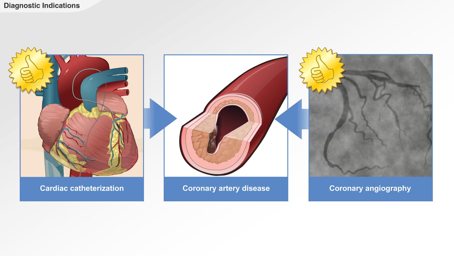 The Principles of Cardiac Catheterization-A.D.A.M. OnDemand