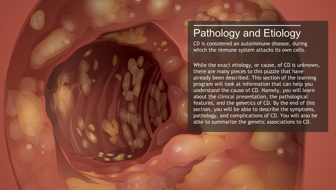 understanding crohn's disease-a.d.a.m. ondemand